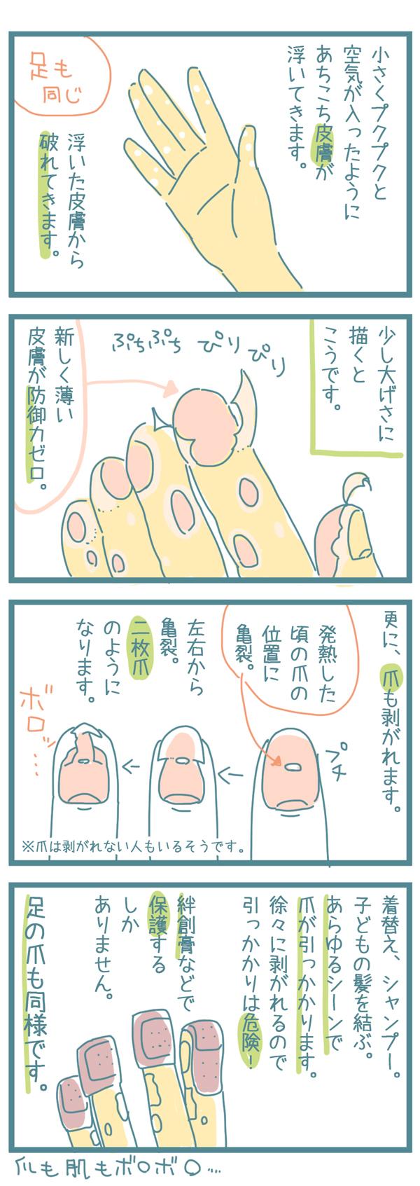 手足口病 症状 赤ちゃん