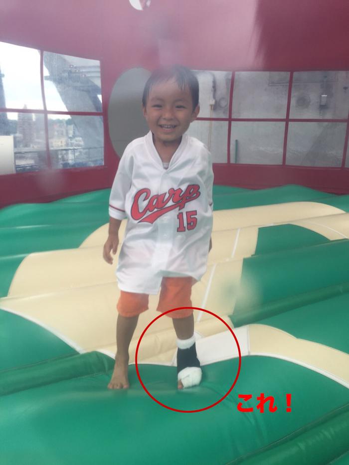 子どもの怪我や危なっかしい行動はどこまで許容できる?子どもが「加減」を学ぶために気をつけていることの画像3