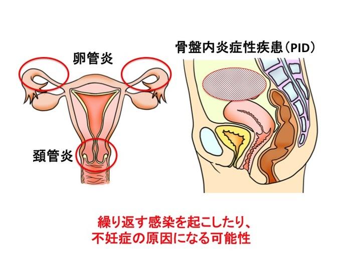 不妊症の原因にも!性感染症の基礎知識~淋菌とクラミジア~の画像2