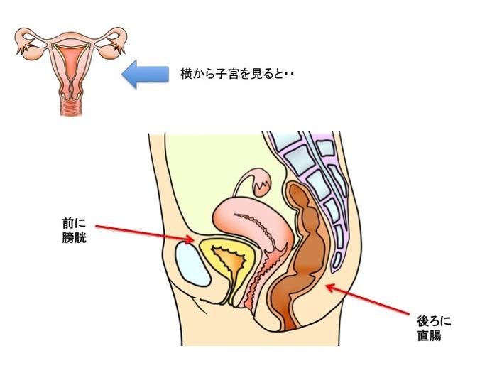ひどい生理痛や不妊症の原因にも…「子宮内膜症」ってどんな病気?症状やメカニズムを知っておこうの画像4