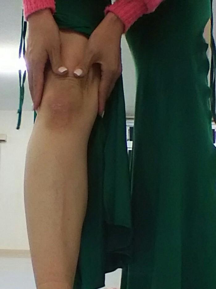 膝を痛めない立ち方!膝痛予防解消エクササイズの画像2