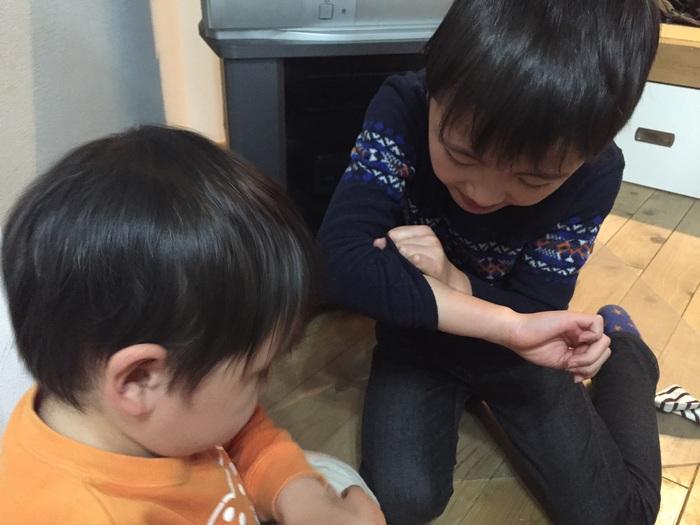 子どもの手にくっきりと歯形が!お友だちにかまれて帰ってきたら、親はどう対応したらいい?の画像1