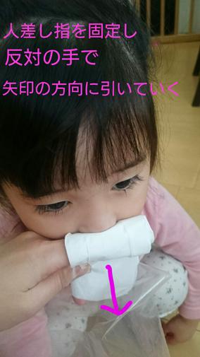 子どもの鼻水トラブル!上手な拭きとり方と鼻下のかぶれの対処法の画像2