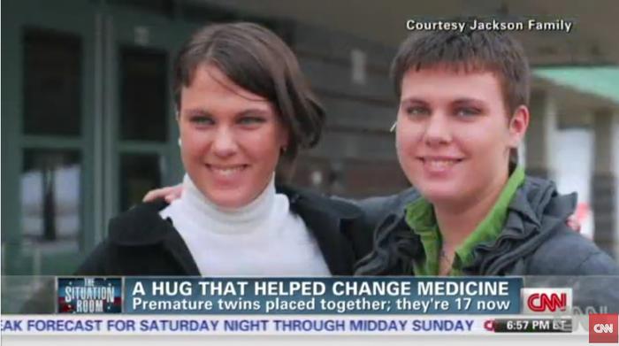 「命の抱擁」〜保育器の中で双子の姉妹が起こした奇跡と、気になるその後〜の画像4