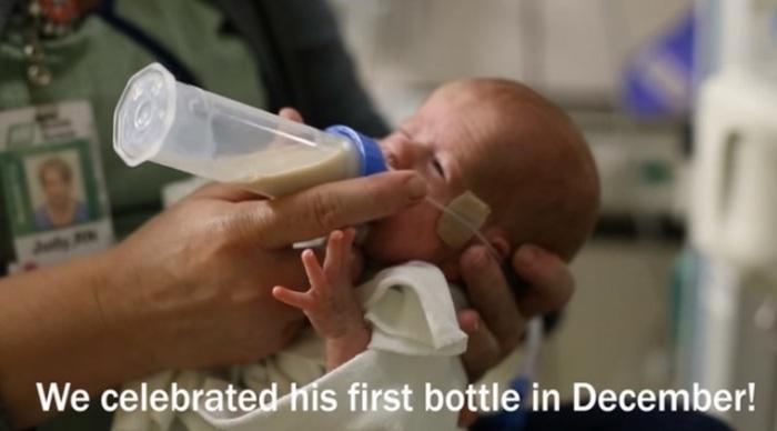 妊娠24週目で生まれた低出生体重児の赤ちゃん。パパママが撮り続けた1年の成長記録に思わず涙。の画像1
