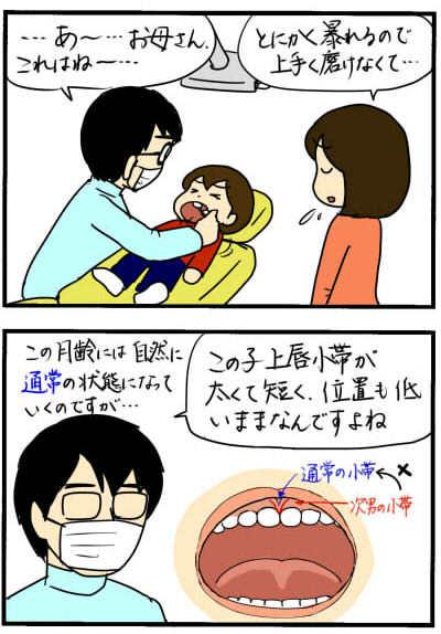 歯磨きを嫌がりすぎる次男、その意外な理由とは!?の画像4