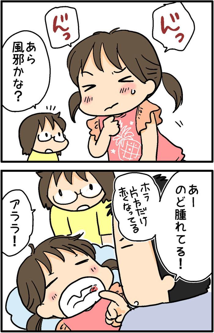 娘の喉が腫れてる!病院に行ってみたら、意外なことが分かりましたの画像1