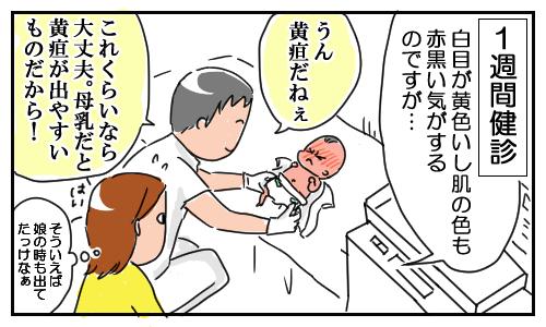 「新生児黄疸」による赤い肌を、気にしすぎる実母。その結果…の画像3