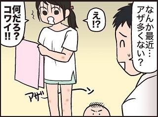 """「薄着になると、隠せない!(涙)」""""夏""""ならではの子育てあるある大集合!の画像22"""
