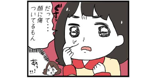 """姉弟ゲンカで娘の顔に傷が…。心配したママの""""声かけ""""で失敗してしまった話のタイトル画像"""