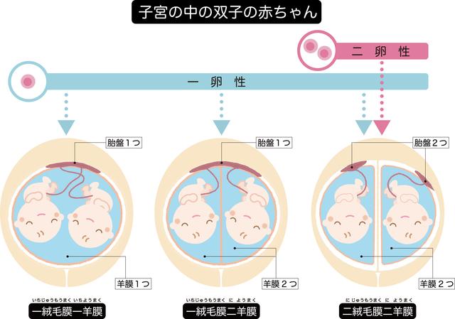 【医師監修】双子の妊娠が判明!双子のふしぎと妊娠・出産で気をつけるべきことの画像3