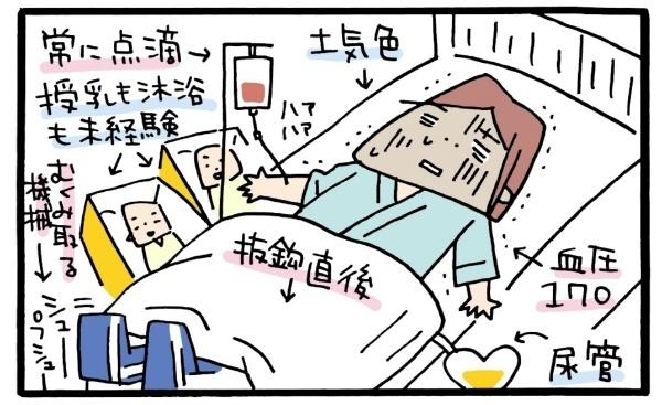 双子出産はどんな感じ?先輩ママから情報収集→イメトレ→想定外の展開になった話の画像5