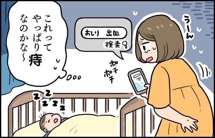 意外と多い!?産後ママのおしりの痛みやトラブルには早めの対処をの画像4