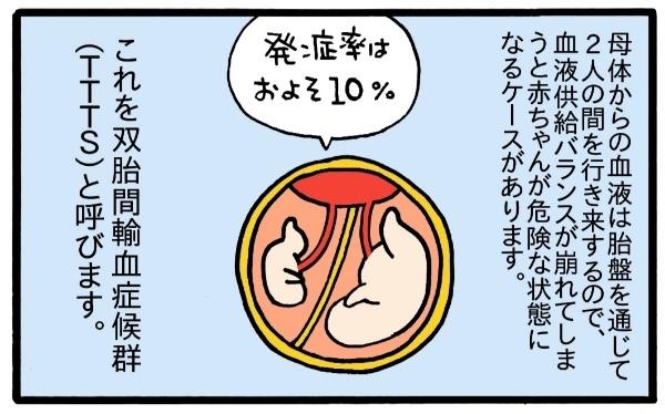 """私、""""普通""""の妊婦生活は送れないの…?「双子妊娠」と「リスク」のことの画像7"""