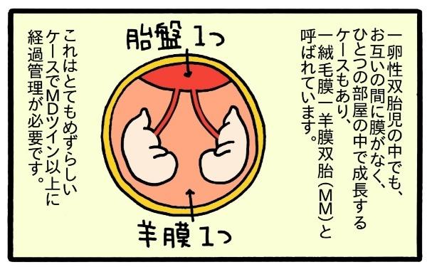 """私、""""普通""""の妊婦生活は送れないの…?「双子妊娠」と「リスク」のことの画像9"""