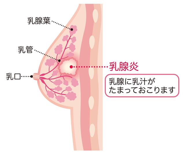 乳腺炎ってなに?乳腺炎の症状と原因、予防と対処法についての画像1