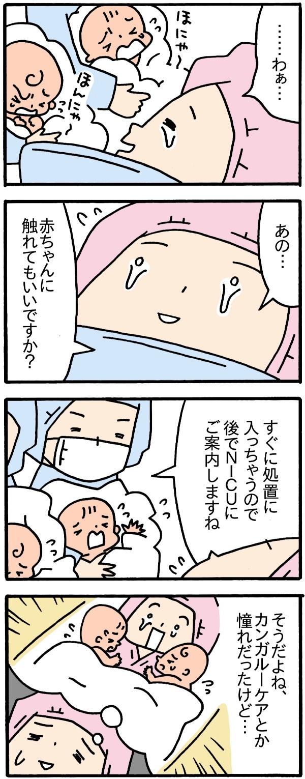 保育器ごしの対面、1人での搾乳…。出産は嬉しいのに、モヤモヤするのはなぜだろうの画像1