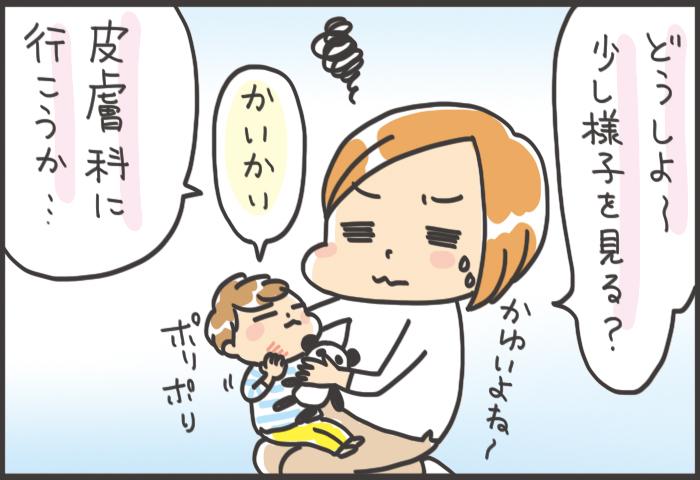かきこわす前に対処!おうちでできる子どもの肌ケアおすすめアイテムの画像4