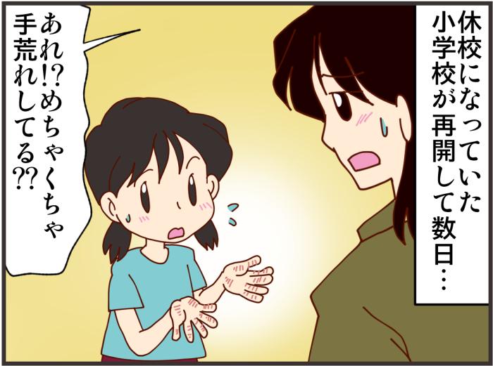 ママ友、避けられてたのに?…感染予防で肌荒れ!…編集部のおすすめ記事!の画像4