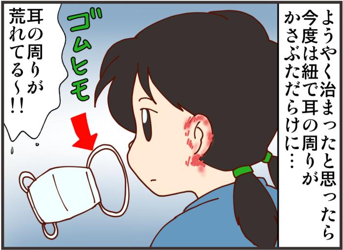マスク生活で娘の耳が荒れて…。肌の弱い方におすすめのマスク用バンドとはの画像2