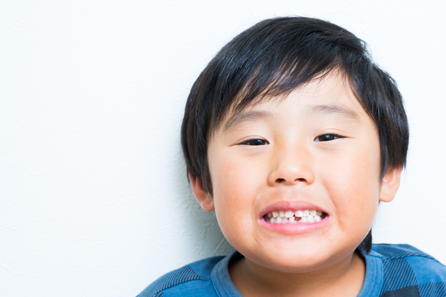 """「ウソでしょ…」8本目の歯が抜けたとき、双子が初めて知った""""真実""""の画像3"""