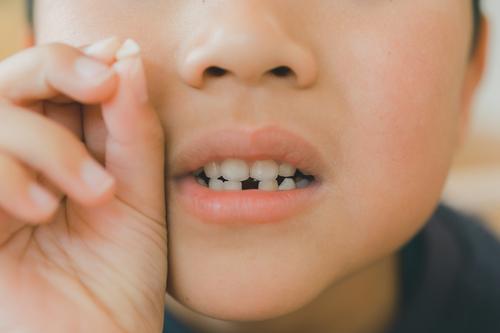 """「ウソでしょ…」8本目の歯が抜けたとき、双子が初めて知った""""真実""""のタイトル画像"""